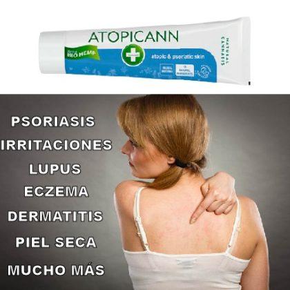 Atopicann