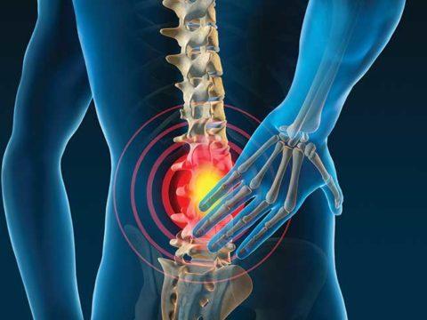 cbd para dolor de espalda canalanza